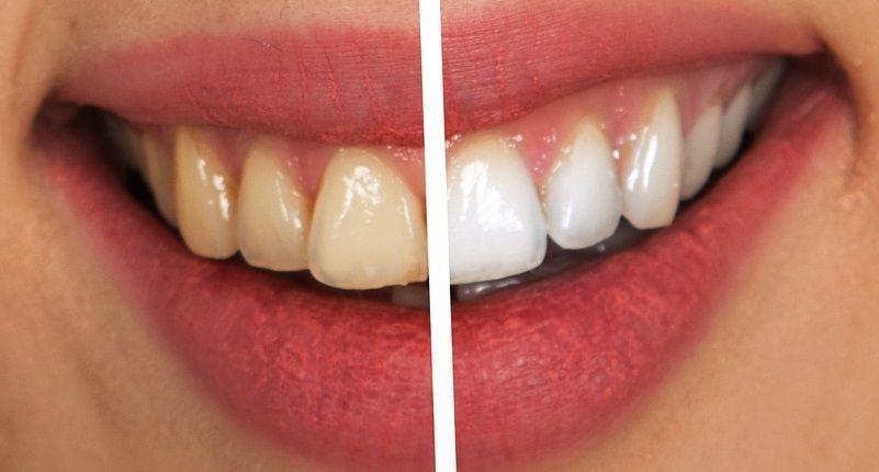 Desventajas de usar los cepillos de dientes eléctricos