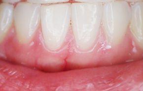 Mejorar la Periodontitis con el Cepillo Eléctrico