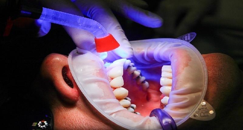 bandas de blanqueadores dentales