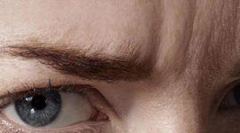Esto es lo que puedes hacer para eliminar las arrugas del entrecejo